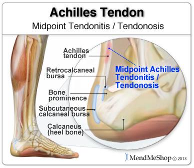 Midpoint Achilles Tendonitis or Tendonosis