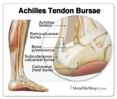 The retrocalcaneal bursa and subcutaneous calcaneal bursa protect the Achilles tendon from damage due to friction.
