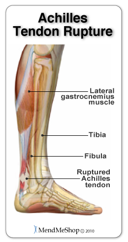 Achilles tendon rupture occurs when the tendon and adjoining muscles are weak.