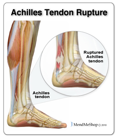 Serious Achilles tendon injuries, such as a rupture, cause severe instability in the lower leg and require more intensive surgery to fix.