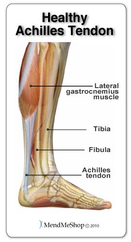 A healthy Achilles tendon will remain flexible