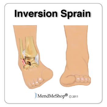 A common cause of peroneal tendonitis is the stretching of the tendons during an inversion sprain or rolling over on your ankle.