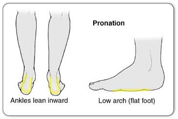 Chronic Achilles tendinitis may be caused by over-pronation of the foot or flat feet.