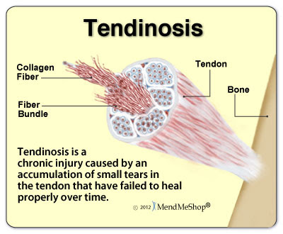 Tendinosis pain and tissue degeneration.
