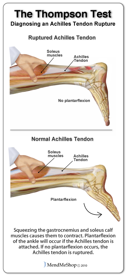The doctor will use The Thompson Test to determine if the Achilles tendon is ruptured. When the calf muscles are squeezed, the foot should go into plantarflexion if the Achilles tendon is intact.